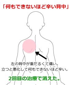 肋間 神経痛 ツボ