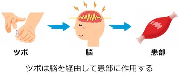 ツボは脳を経由して患部に作用する