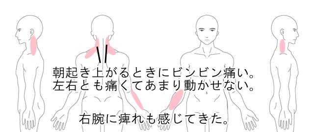 痛い 首 左側 リンパ痛みが左首にでてしまうことについて解説します。