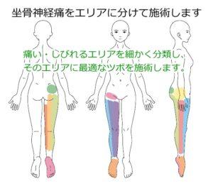 坐骨神経痛のエリア別治療